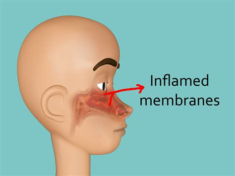 stuffy nose how to get rid of a stuffy nose quickly with pictures wikihow
