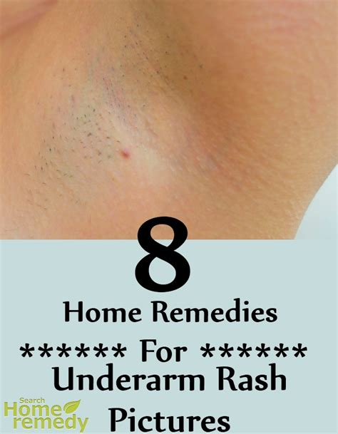 8 home remedies for underarm rash pictures search home
