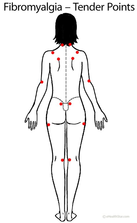 fibromyalgia tender points diagram car hit from sh3 me
