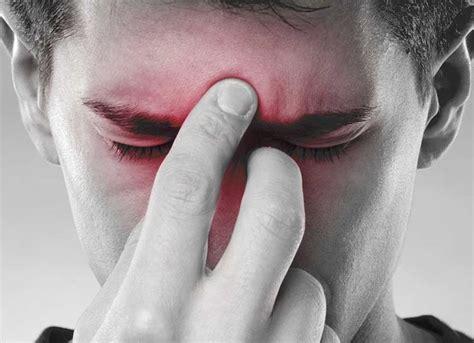sinusite mal di testa rimedi rimedi naturali peri l mal di testa guide trucchi e consigli