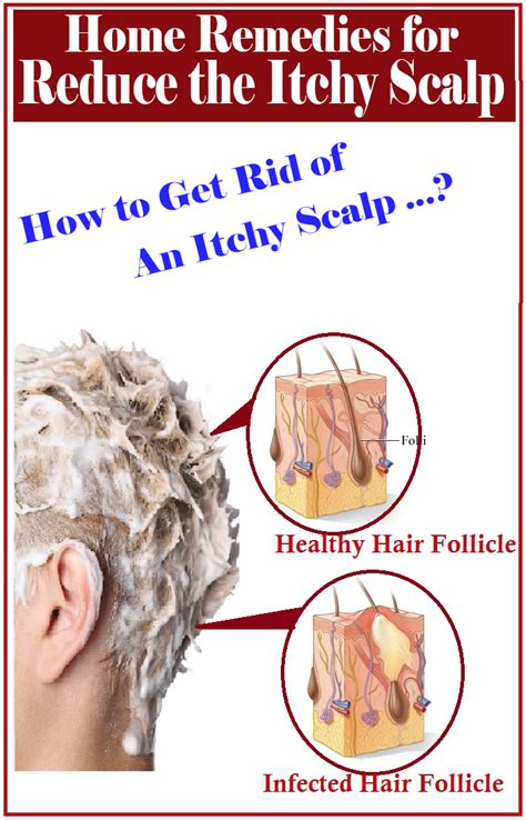 how to care for a itchy scalp with kinky twist home remedies for itchy scalp hair body lips hands