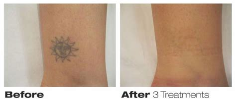 precision tattoo removal precision laser removal toronto on ourbis