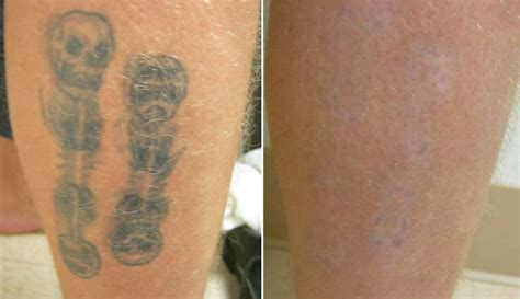 tattoo removal palm springs contour dermatology removal before and after