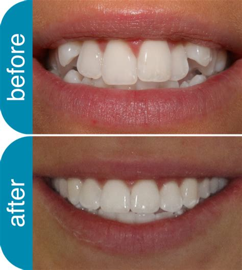 Dijamin Clear St Smile Clear Braces Dentist Melbourne Invisalign Teeth