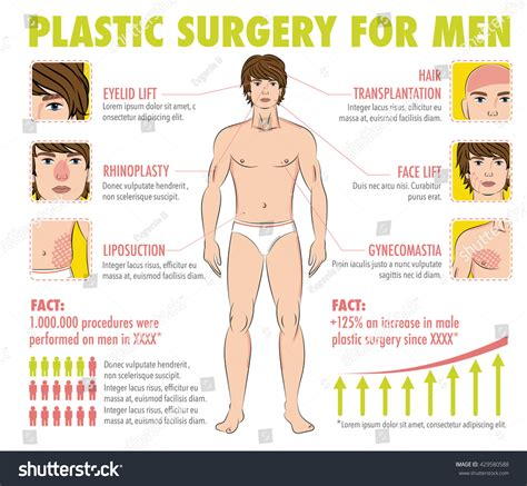 surgery information understanding surgery surgery a to z body face men plastic surgery infographics stock vector