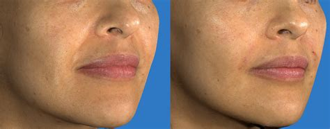 juvederm fillers face before amp after dermmedica