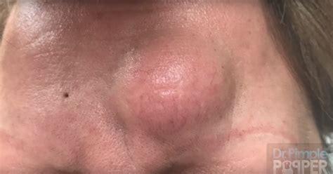 Dr Pimple by Zit Popper Images