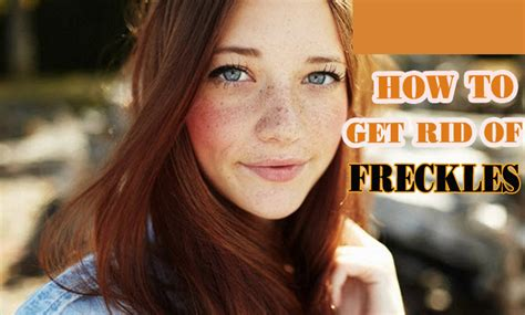 10 Ways To Get Rid Of Freckles by How To Get Rid Of Freckles On 10 Home Remedies