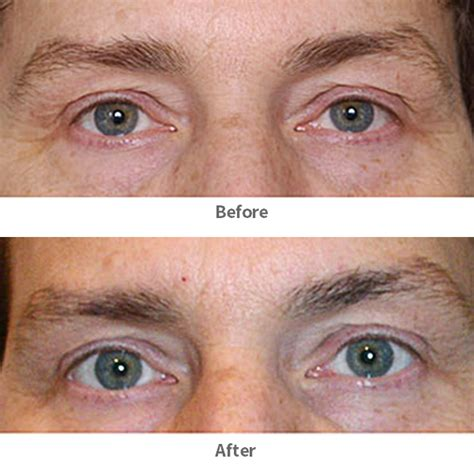 eye irritation cosmetic acupuncture new york acupuncture and facelift in nyc and htons