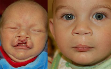 remedy fr cleft chin treatment for bilateral cleft lip the art of beauty