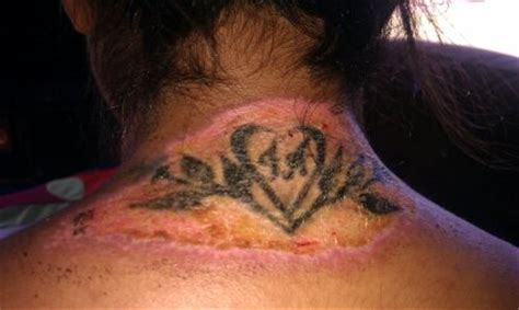 sandpaper tattoo removal laser clinic bournemouth laser clinic bournemouth blog
