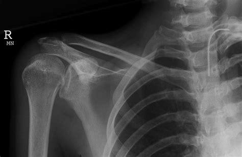dislocated shoulder posterior shoulder dislocation