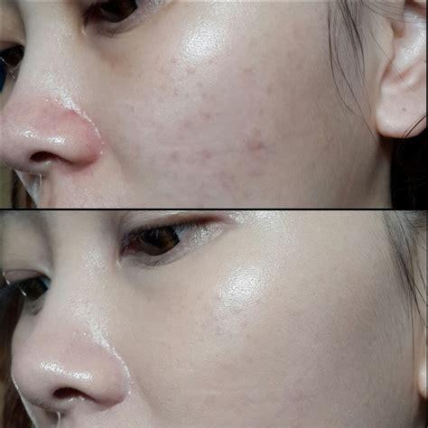 Sk Ii Acne complexion corrector cc review