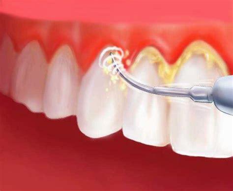 Pembersihan Karang Gigi Di Rumah Sakit 8 cara uh menghilangkan karang gigi dokter gigi