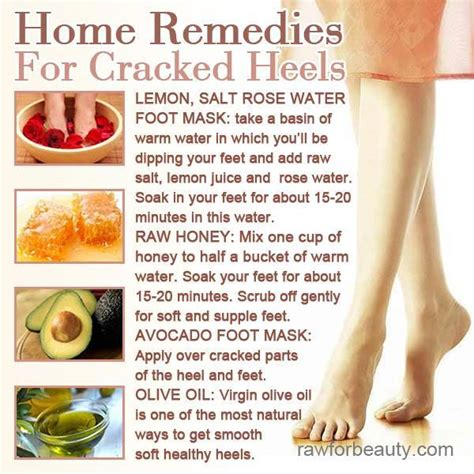 home remedies for cracked heels hacks for the home the