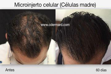 alopecia celulas madre 2016 microinjerto celular c 233 lulas madre para alopecias cdermard