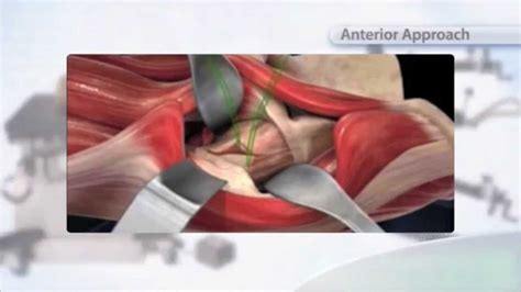 find a physician superpath hip replacement superpath hip replacement in australia youtube