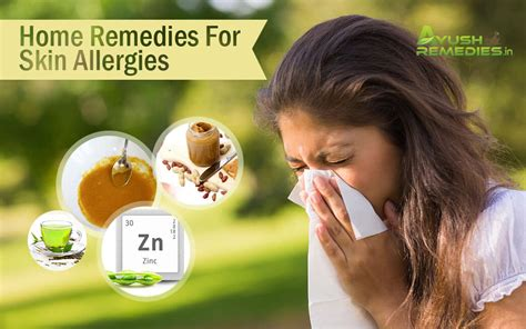 7 best home remedies for skin allergies get marvellous