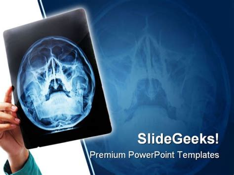 Xray Medical Powerpoint Template 0610 Radiology Powerpoint Template