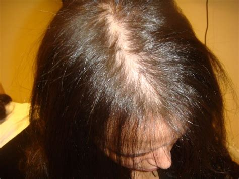 alopecia hair loss in women hair loss and treatment