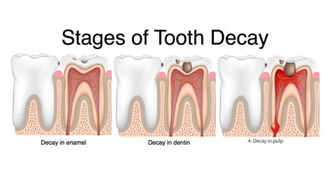 dental testimonials cure tooth decay what is decay types of dental decay dentist central london