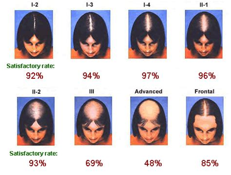 pictures of resonable amoount of hair thinning in bang area in 50s hair loss concealer frequently asked questions about caboki