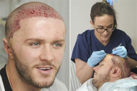 paddy mcguinness hair implants geordie shore s kyle christie gets gruesome hair
