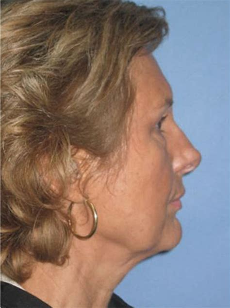 hairstyles that cover face lift scars hairstyles to hide facelift scars