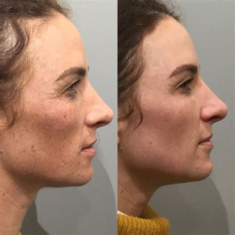 e one ipl session before and after on man and woman face ipl for pigmentation