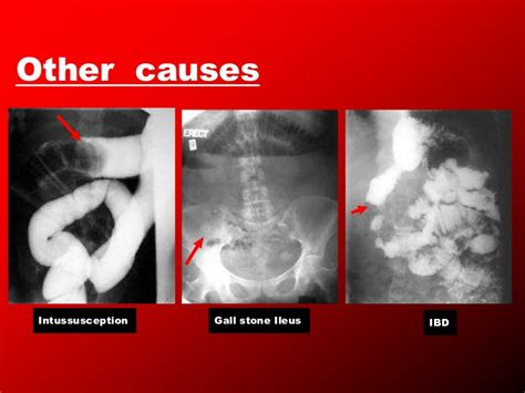 Large Stool Causes by Intestinal Obstruction2