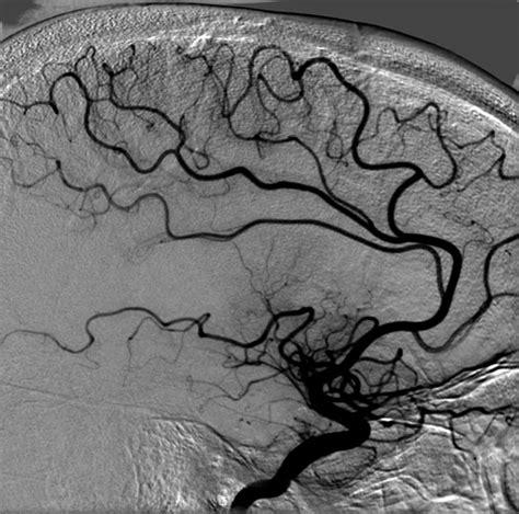 angiografia cerebral ex 225 menes invasivos en enfermer 237 a arteriograf 237 a renal y