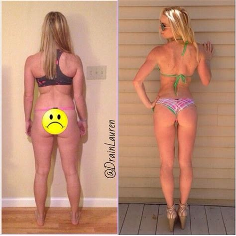 Back Slim In A Week Time We Shall Overco Ome Day 1 by Drain Kagan Before After Photos 9 Months Of