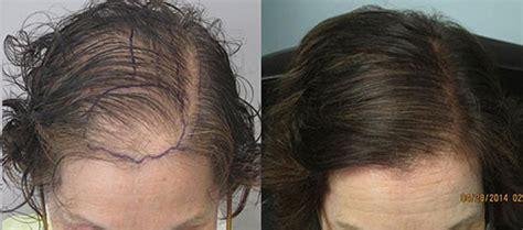 hair transplant for women women s hair transplant in los angeles