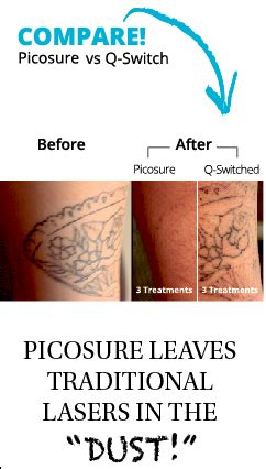picosure tattoo removal price removal skinpossible laser light calgary laser