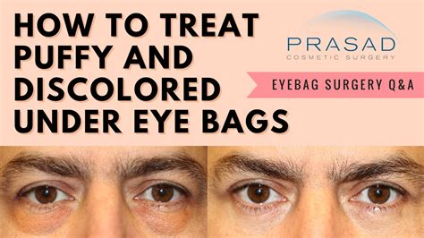 Reasons For Eye Circles And Puffiness by Eye Bags And Circles Removing The And