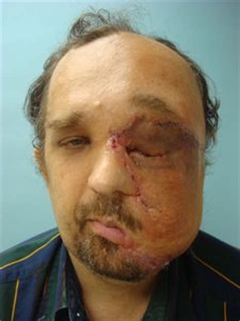 jose man with no face after surgery my giant face tumour programs discovery home health