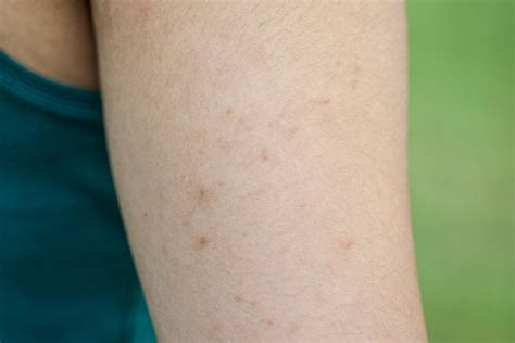 small itchy bumps on tattoo keratosis pilaris how to get rid of chicken skin reader