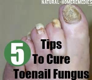 thick toenails home remedy 5 cure for toenail fungus treatments