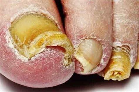 White Toenail Fungus Pictures