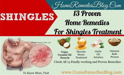 how to cure shingles in 3 days or less secretly healthy