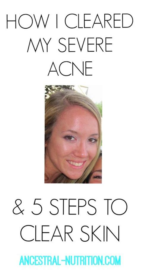 clear 7 steps to clear skin books best 25 clear skin diet ideas on skin food