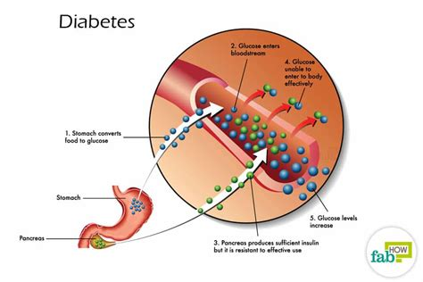 diabetes diagram how to and treat diabetes with home remedies fab how