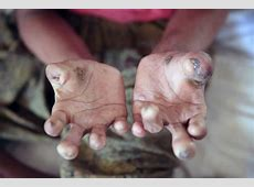 Effects of Leprosy - The Leprosy Mission Australia Jesus Nail Clip Art