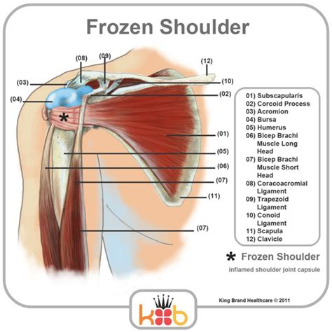 tendon diagram anatomy of shoulder muscles and tendons human anatomy