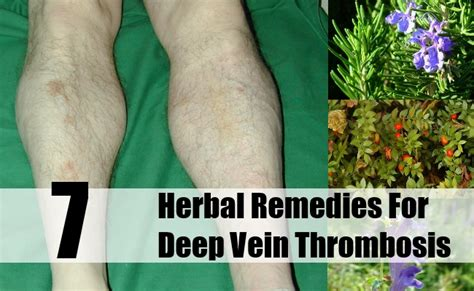 7 amazing herbal remedies for vein thrombosis the