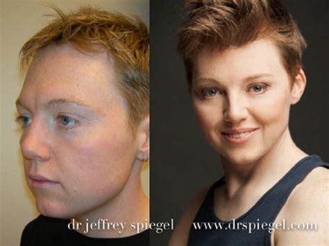 facial masculinization surgery facial feminization surgery a rebirth for transgender