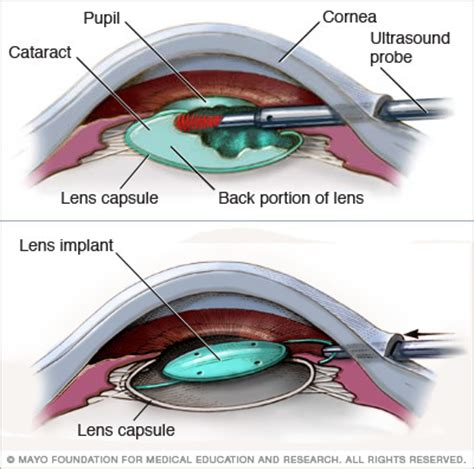 cataract surgery riversideonline cataracts