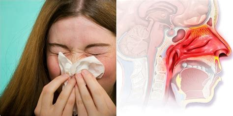 stuffy nose 7 science backed home remedies to clear a stuffy nose instantly