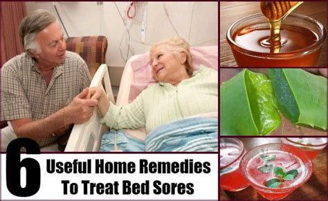 6 useful home remedies to treat bed sores natural cure