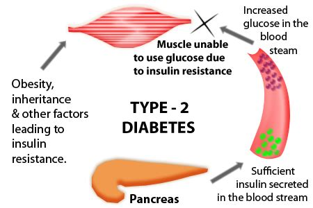 real results for with type 2 diabetes books viralitytoday this is the real about type 2 diabetes